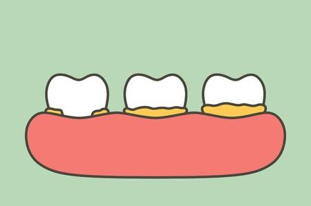 cara menghilangkan karang gigi